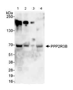 Western blot - Anti-PPP2R3B antibody (ab72027)