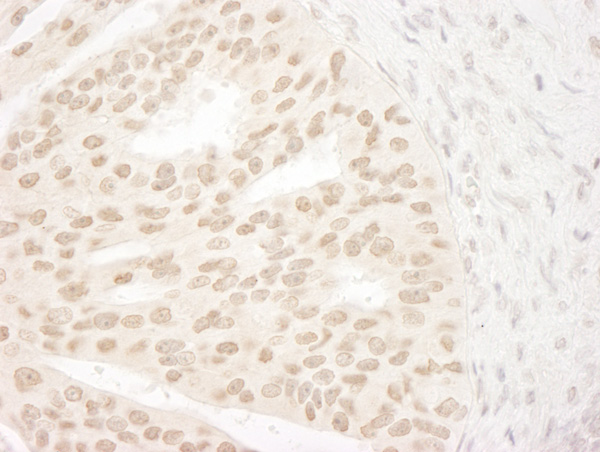 Immunohistochemistry (Formalin/PFA-fixed paraffin-embedded sections) - Anti-ANKRD28 antibody (ab72037)