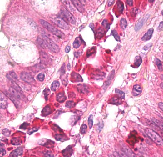 Immunohistochemistry (Formalin/PFA-fixed paraffin-embedded sections) - Anti-AMBRA1 antibody (ab72098)