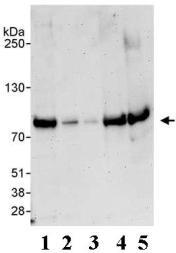 Western blot - Anti-Cullin 3 antibody (ab72187)