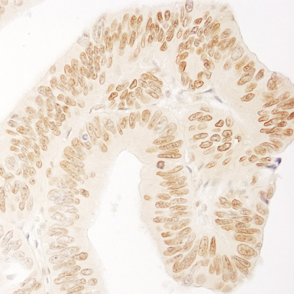 Immunohistochemistry (Formalin/PFA-fixed paraffin-embedded sections) - Anti-USP36 antibody (ab72243)