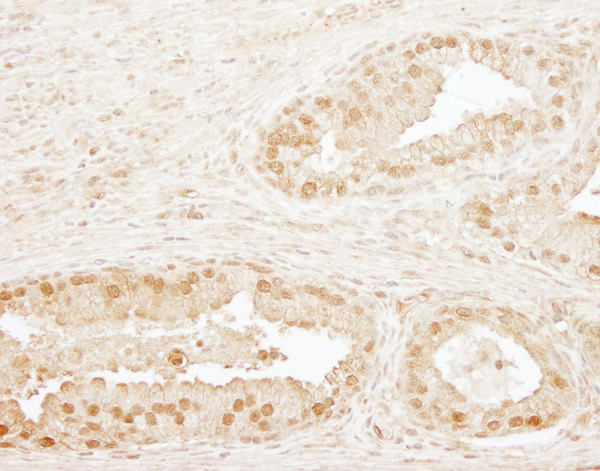 Immunohistochemistry (Formalin/PFA-fixed paraffin-embedded sections) - Anti-CPSF73 antibody (ab72294)