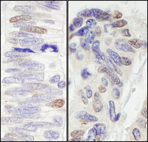 Immunohistochemistry (Formalin/PFA-fixed paraffin-embedded sections) - Anti-Pescadillo antibody (ab72537)