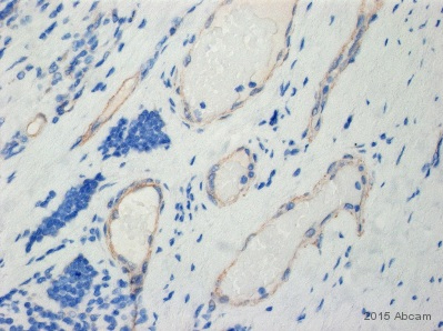 Immunohistochemistry (Formalin/PFA-fixed paraffin-embedded sections) - Anti-Wnt5a antibody (ab72583)