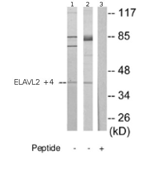 Western blot - Anti-ELAVL2 + ELAVL4 antibody (ab72603)