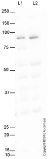 Western blot - Anti-CCHCR1 antibody (ab72735)