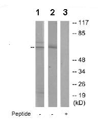 Western blot - Anti-ADCK2 antibody (ab72758)