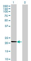 Western blot - Anti-APRT antibody (ab72782)