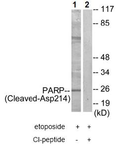 Western blot - Anti-Cleaved PARP1 antibody (ab72805)