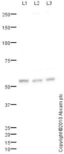 Western blot - Anti-MMP8 antibody (ab72897)