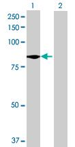 Western blot - Anti-TTC39B antibody (ab72982)