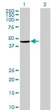 Western blot - Anti-PARP15 antibody (ab73060)