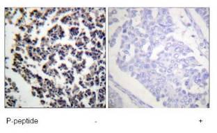 Immunohistochemistry (Formalin/PFA-fixed paraffin-embedded sections) - Anti-BLNK (phospho Y96) antibody (ab73204)