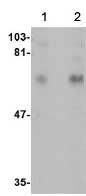 Western blot - Anti-CPEB1 antibody (ab73287)