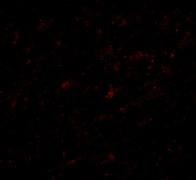 Immunocytochemistry/ Immunofluorescence - Anti-Lass5 antibody (ab73289)