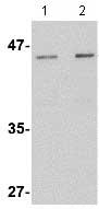 Western blot - Anti-Lass5 antibody (ab73289)
