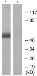 Western blot - Anti-PDCD4 (phospho S67) antibody (ab73343)