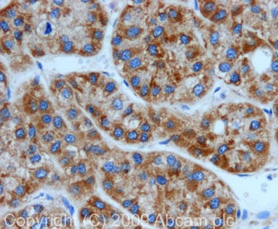 Immunohistochemistry (Formalin/PFA-fixed paraffin-embedded sections) - Anti-Peroxiredoxin 3 antibody (ab73349)