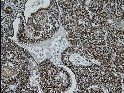 Immunohistochemistry (Formalin/PFA-fixed paraffin-embedded sections) - Anti-Inhibin beta C chain antibody [betaC clone 1] (ab73904)
