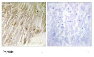 Immunohistochemistry (Formalin/PFA-fixed paraffin-embedded sections) - Anti-CEBP gamma antibody (ab74045)