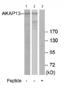 Western blot - Anti-AKAP13 antibody (ab74048)