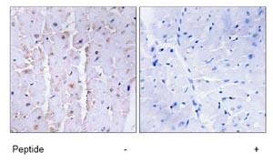 Immunohistochemistry (Formalin/PFA-fixed paraffin-embedded sections) - Anti-AKAP13 antibody (ab74048)