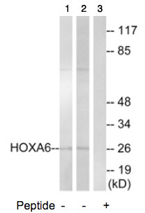 Western blot - Anti-HOXA6 antibody (ab74064)