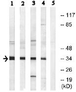 Western blot - Anti-NANOGP8 antibody (ab74096)