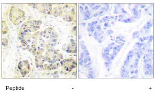 Immunohistochemistry (Formalin/PFA-fixed paraffin-embedded sections) - Anti-MARK 1+2+3+4 antibody (ab74131)