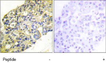 Immunohistochemistry (Formalin/PFA-fixed paraffin-embedded sections) - Anti-PI 3 Kinase p85 alpha + Gamma antibody (ab74136)