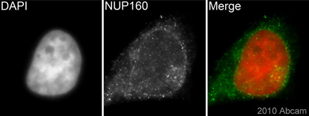 Immunocytochemistry/ Immunofluorescence - Anti-NUP160 antibody (ab74147)