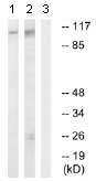 Western blot - Anti-GEF H1 (phospho S885) antibody (ab74156)