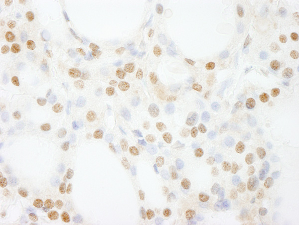 Immunohistochemistry (Formalin/PFA-fixed paraffin-embedded sections) - Anti-GTF3C4 antibody (ab74229)