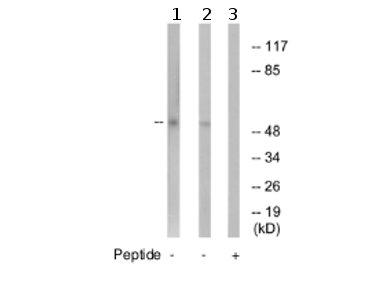 Western blot - Anti-GABA A Receptor gamma 1 antibody (ab74327)