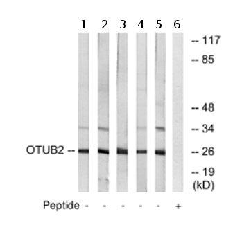 Western blot - Anti-OTUB2 antibody (ab74371)