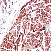 Immunohistochemistry (Formalin/PFA-fixed paraffin-embedded sections) - Anti-Prohibitin antibody, prediluted (ab74539)