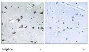 Immunohistochemistry (Formalin/PFA-fixed paraffin-embedded sections) - Anti-EIF3F antibody (ab74568)