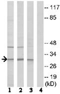 Western blot - Anti-RPS4Y1 antibody (ab74709)