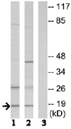 Western blot - Anti-SSBP1 antibody (ab74710)