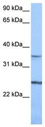 Western blot - Anti-PIGF antibody (ab74778)