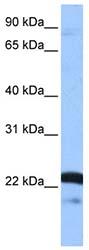 Western blot - Anti-SFRS9 antibody (ab74782)