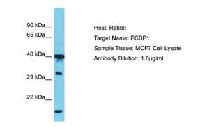 Western blot - Anti-PCBP1 antibody (ab74793)