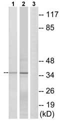 Western blot - Anti-ELOVL1 antibody (ab74941)