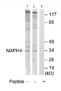 Western blot - Anti-NXPH4 antibody (ab74999)