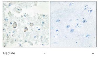 Immunohistochemistry (Formalin/PFA-fixed paraffin-embedded sections) - Anti-DOK7 antibody (ab75049)