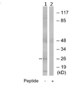 Western blot - Anti-Claudin 6 antibody (ab75055)