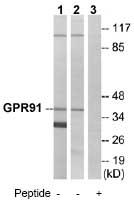 Western blot - Anti-GPR91 antibody (ab75105)
