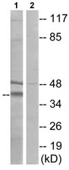 Western blot - Anti-BDKRB1 antibody (ab75148)