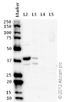 Western blot - Anti-Lactate Dehydrogenase B antibody (ab75167)
