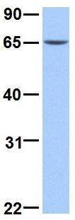 Western blot - Anti-ERM / Etv5 antibody (ab75170)